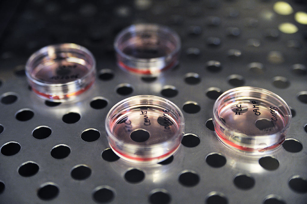 Barncancerfonden har stöttat forskning inom CAR-T-cellsterapi under flera år. Nu hoppas man att även svenska barn snart ska kunna ta del av den nya behandlingen. Foto: Charlotte Gawell